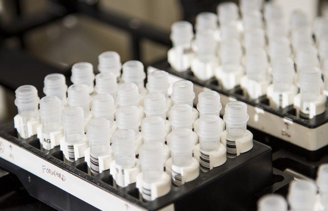 Нови подходи при използване на маркера CA-125 за уточняване на диагноза ендометриоза